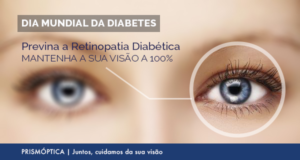diabetes_retinopatia_01